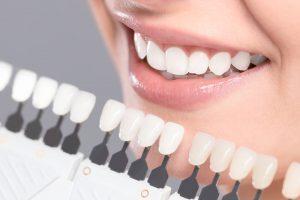 pielęgnacja i wybielanie zębów